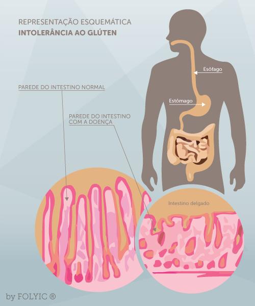 Veja como o glúten causa alteração da parede intestinal, diminuição da absorção de nutrientes e consequentemente a queda de cabelo. Fonte da imagem: http://www.brasilescola.com