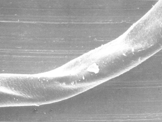 4: Haste capilar do cabelo ondulado visto em microscópio eletrônico
