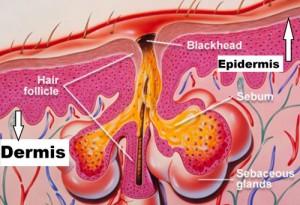 glandula-sebacea-com-excesso-na-producao-de-sebo