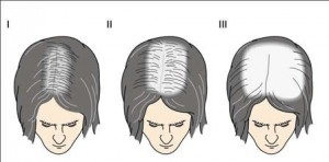 Classificação da Alopecia Androgenetica segundo Ludwig