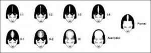 calvície, tratamento, alopecia